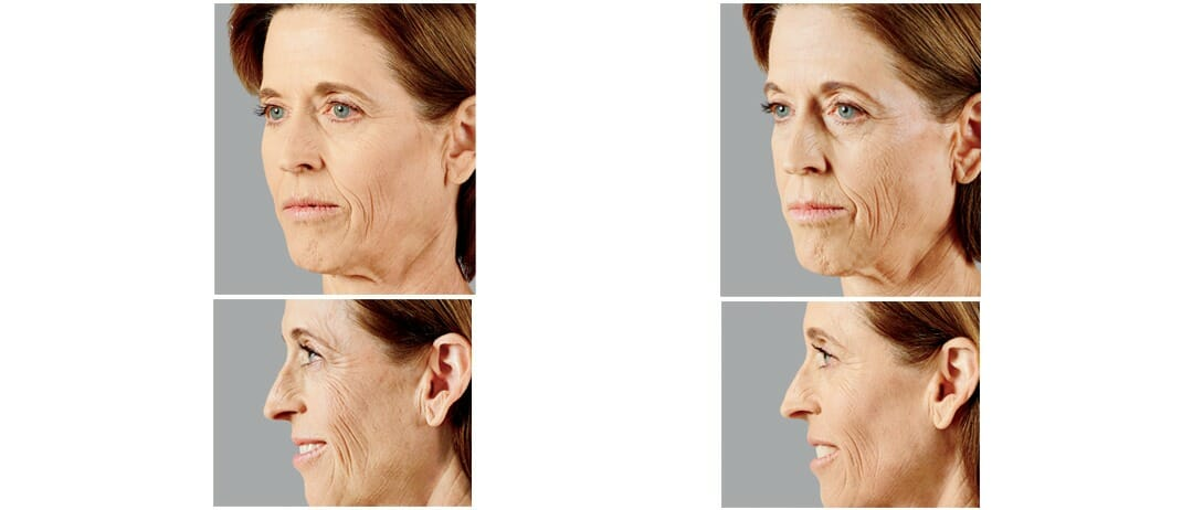 liquid face lift before and after