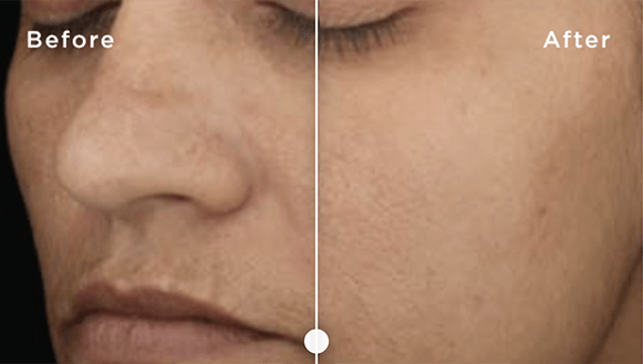 skinmedica before and after