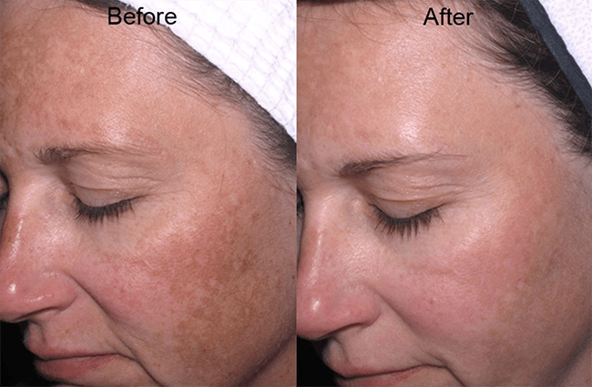 skinmedica before and after allergen treatment