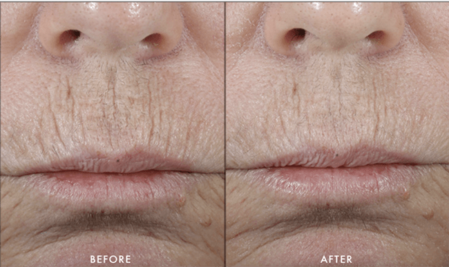 skinmedica lip lines treatment before and after